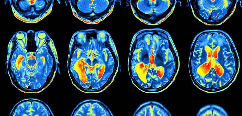 Les neurosciences ont-elles enterré l'âme humaine ?